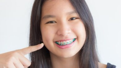 Photo of Use Dental Braces to Straighten Teeth and Get Beautiful Smile